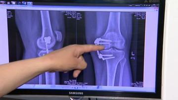 Amputowano mu nogę z powodu raka kości. Potrzebuje protezy
