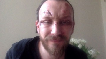04-05-2016 11:11 Dramaturg pobity przez pseudokibiców? Policja nic o sprawie nie wie