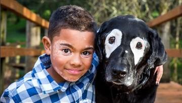 """27-03-2017 21:26 """"Chłopiec odzyskał wiarę w siebie"""". Niezwykła przyjaźń dziecka i psa - chorych na bielactwo"""