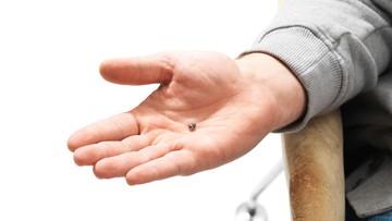 25-07-2017 09:50 Firma z USA będzie wszczepiać mikroczipy swoim pracownikom