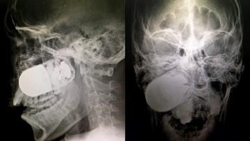 Żołnierz z granatem w głowie. Niezwykła historia z Kolumbii