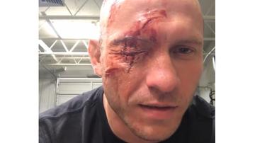 2016-11-22 Zawodnik UFC zmasakrował sobie twarz