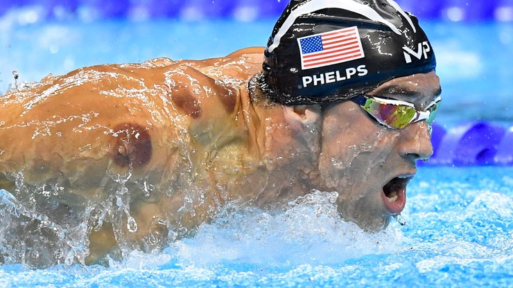 Zagadka śladów na ciałach sportowców rozwiązana. W ramach regeneracji stosują bańki