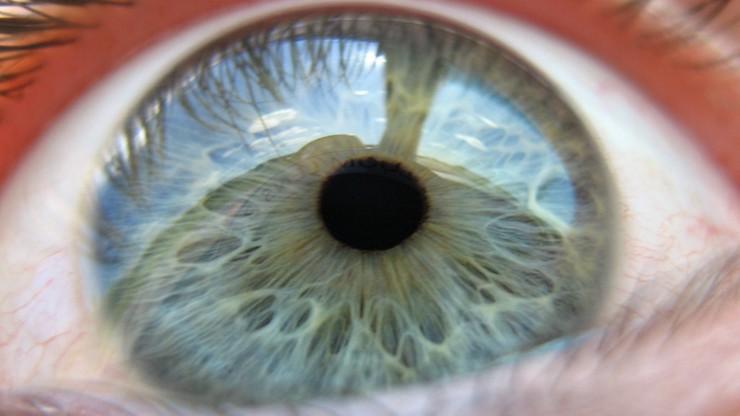 Leczą oczy poparzone gaszonym wapnem. Przeszczepiają komórki macierzyste z rogówki zdrowego oka
