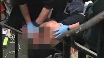 13-09-2017 11:41 Pies pod wpływem narkotyków zagryzł swojego opiekuna