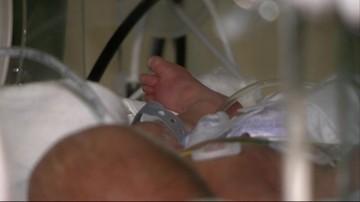 Lekarze z Legnicy zoperowali ciężarną z guzem mózgu. Uratowali życie matce i dziecku