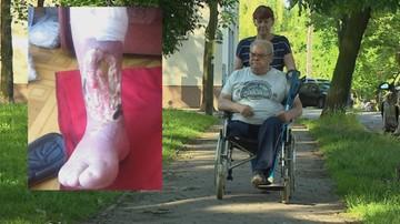 Przez wypadek amputowano mu nogę. Odszkodowania nie dostanie
