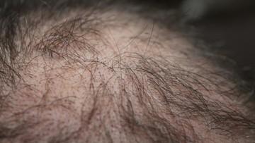 Bliżej leku na łysienie - ogłosili koreańscy naukowcy. Trwają testy na zwierzętach