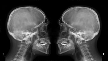 19-09-2016 19:34 Nowotwory głowy i szyi - badanie może uratować życie