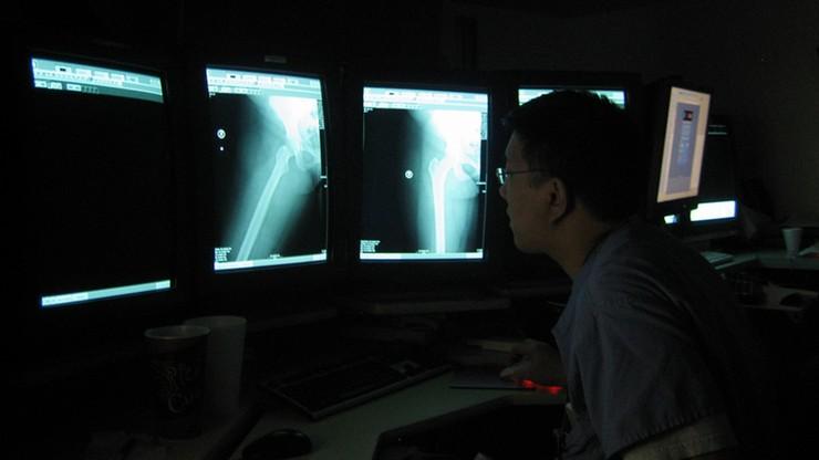 W radomskim szpitalu może zabraknąć radiologów