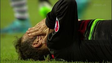 2015-09-04 Krwawy sport. Rozcięta twarz Carvalho
