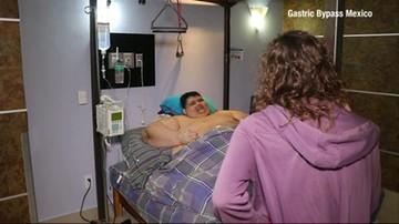 Schudł 175 kg. Najgrubszy człowiek na świecie przeszedł operację serca