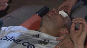 2016-11-06 Van Persie stracił wzrok na meczu?! Fatalna kontuzja oka