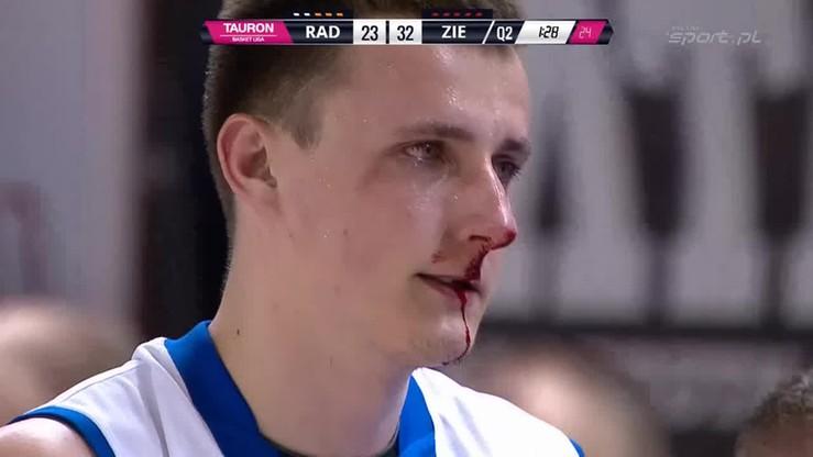 Rosa - Stelmet: Łokieć... nos... krew