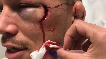 2017-01-23 Ten nokaut przejdzie do historii! Brutalny Daley zmasakrował Wardowi twarz... (WIDEO)