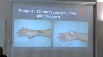 2016-10-13 Wrocław: udana implantacja palca od nogi w miejsce kciuka