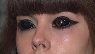 Utrata wzroku po tatuażu gałek ocznych. Dramat 22-letniej Aleksandry z Wrocławia