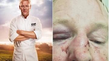 """14-11-2016 15:11 """"Pobili mnie, bo wyglądam jak Trump"""". Atak na szwedzkiego restauratora"""