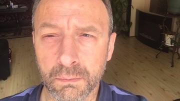 """14-07-2017 15:45 Burmistrz Krosna nie może jeszcze wrócić do pracy. """"Osłabione oczy nie radzą sobie z wirusowym zakażeniem"""""""