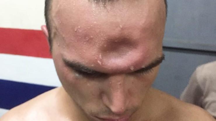 Paskudna kontuzja czaszki! Zawodnik muay thai oberwał potężnym łokciem (ZDJĘCIA)
