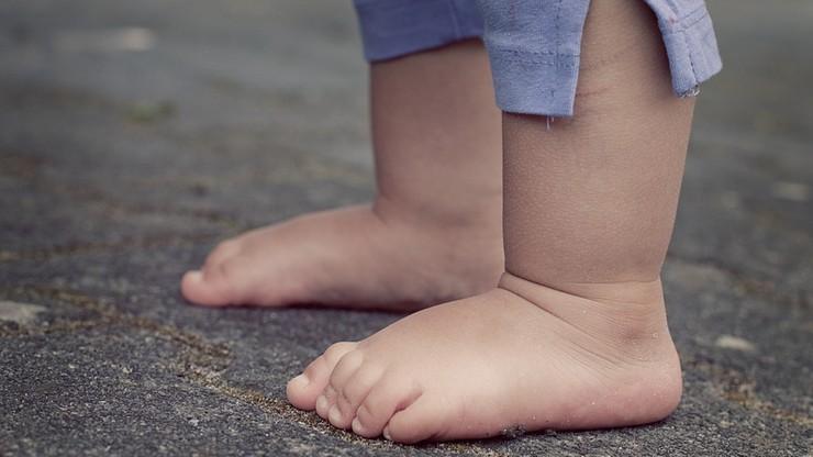Roczne dziecko ważyło 5 kg. Było na wegańskiej diecie