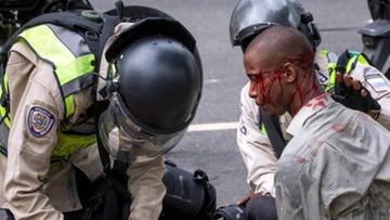 21-04-2017 22:10 Kryzys polityczny i ekonomiczny w Wenezueli. Rośnie liczba ofiar starć z policją