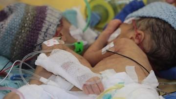 01-02-2016 11:32 Najmłodsze bliźniaki syjamskie rozdzielono w Szwajcarii