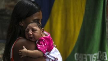 14-04-2016 05:30 Wirus Zika wywołuje mikrocefalię u niemowląt
