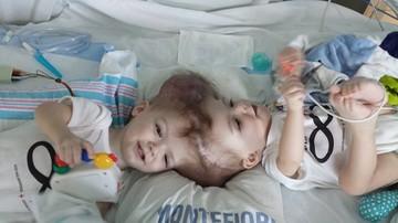 2016-10-14 Rozdzielili syjamskie bliźnięta. Chłopcy byli złączeni głowami