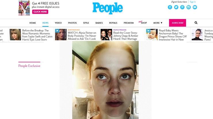 Amber Heard udostępniła kolejne zdjęcia. Podtrzymuje, że Johnny Depp ją bił
