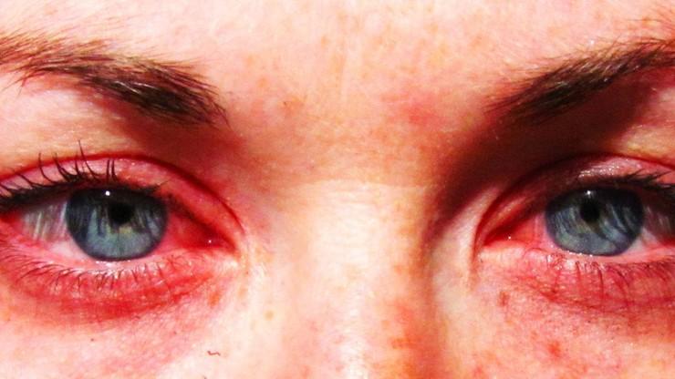 Bezpłatne konsultacje z alergologami w całej Polsce